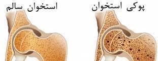 سنجش تراكم استخوان چه کسانی به پوکی استخوان مبتلا می شوند