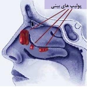 بيمارستان مادر و كودك غدير سينوزيت : پوليپ بيني