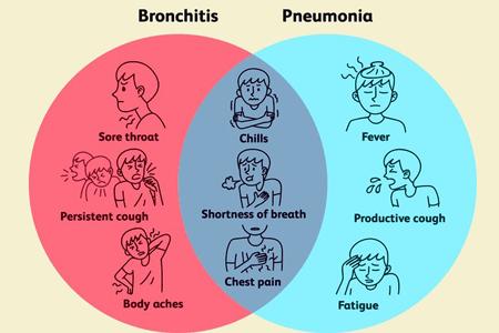 بيمارستان مادر و كودك غدير عفونت ريه : پنوموني - ذات الريه - نومونيا