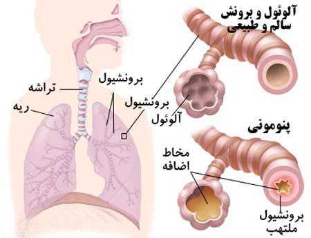 عفونت ريه : پنوموني - ذات الريه - نومونيا تشخیص بیماری