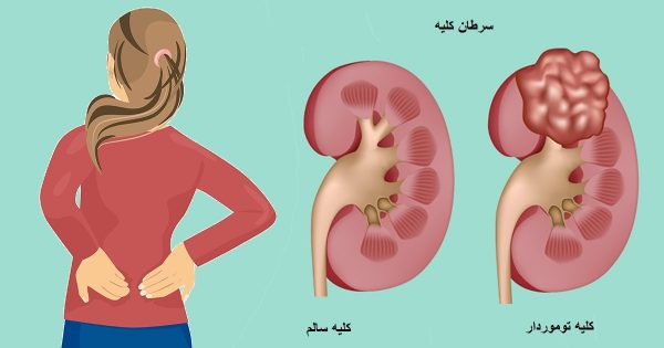 بيمارستان مادر و كودك غدير خارج كردن كليه : نفركتومي (nephrectomy)
