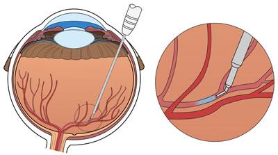 بيمارستان مادر و كودك غدير مراقبت بعد از تزريق داخل چشمي