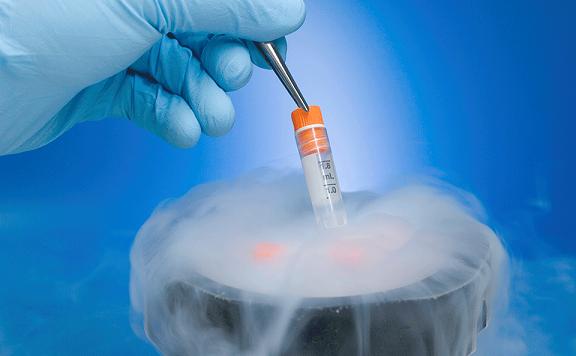 درمان ناباروري و نازايي IVF فريز اسپرم (Sperm Freezing)