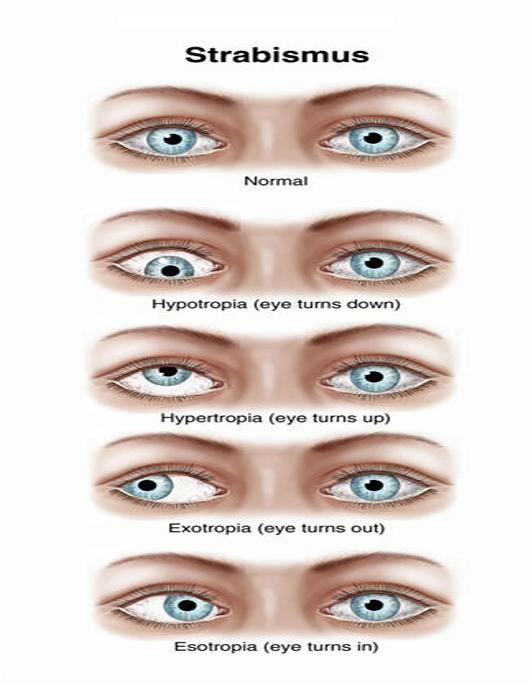چشم پزشكي روش درمان