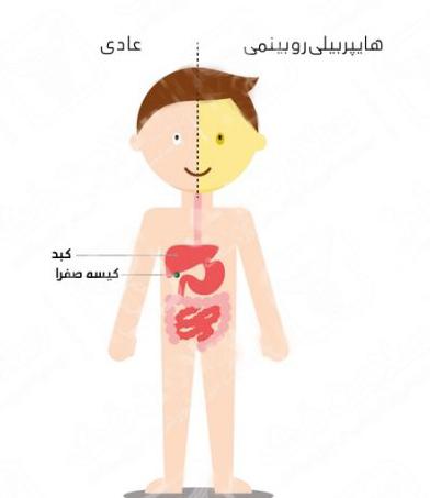 بيمارستان مادر و كودك غدير هايپربيلي روبين نوزادي